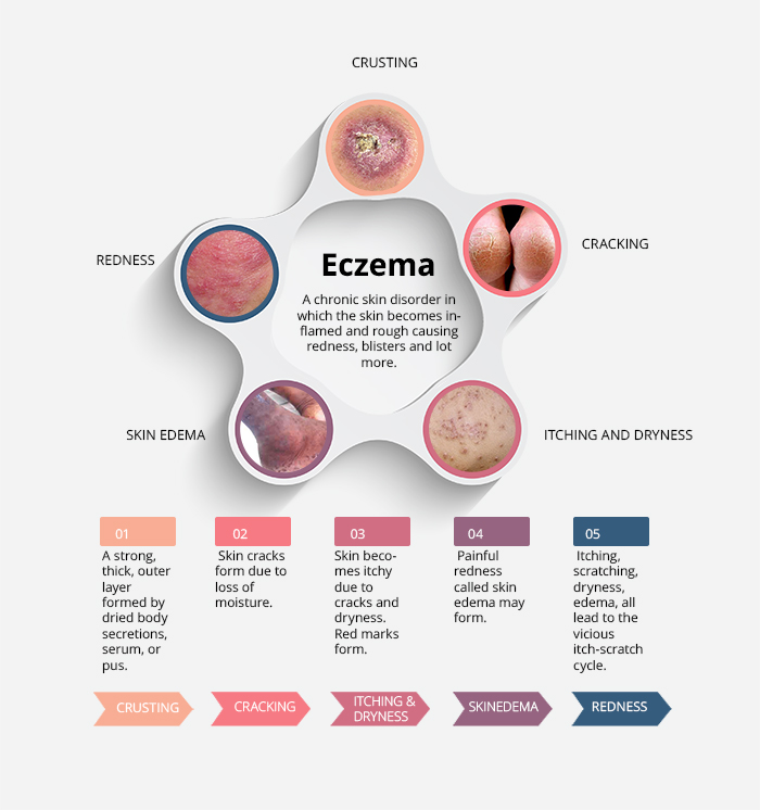 Atopic Dermatitis – Eczema Infographic – Interesting Facts