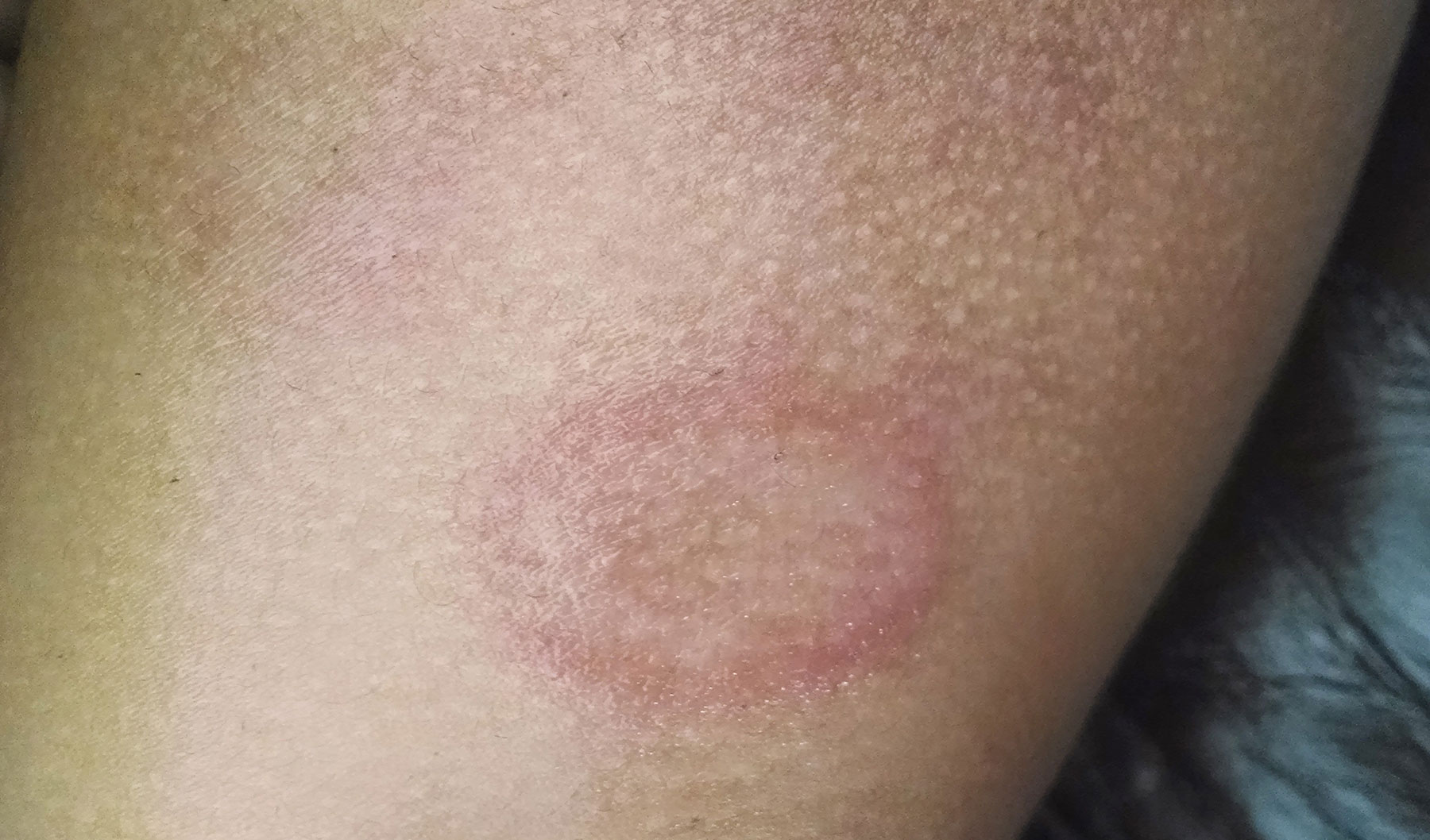 About Me - Eczema Living