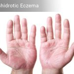 Dyshidrotic Eczema – Home Remedies, Causes & Symptoms