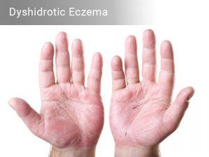 Dyshidrotic Eczema – Home Remedies, Causes & Symptoms