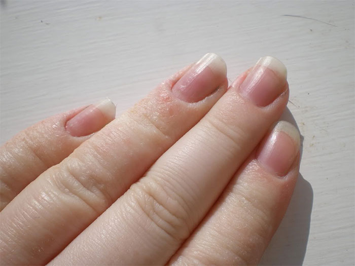 Dyshidrotic Eczema on Fingers