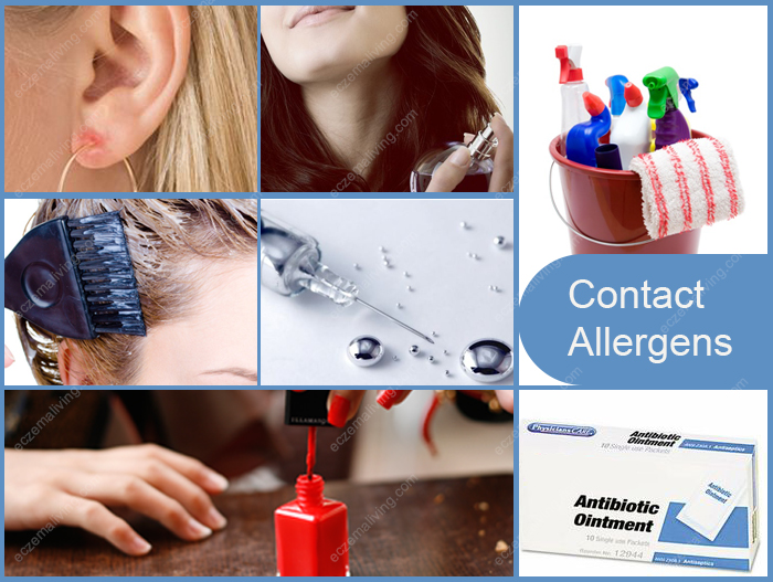 Top Ten Contact Dermatitis Allergens