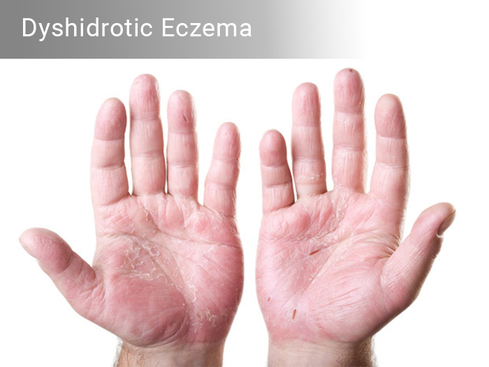 Dyshidrotic Eczema - Symptoms and causes