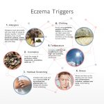 Common Eczema Triggers – INFOGRAPHIC