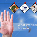 What Works For Eczema - Medications & Home Remedies?