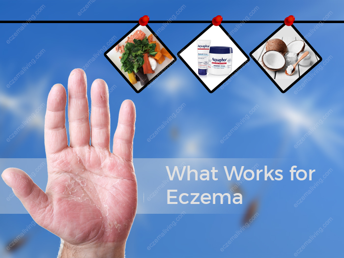 What Works For Eczema ✔  Medications & Home Remedies