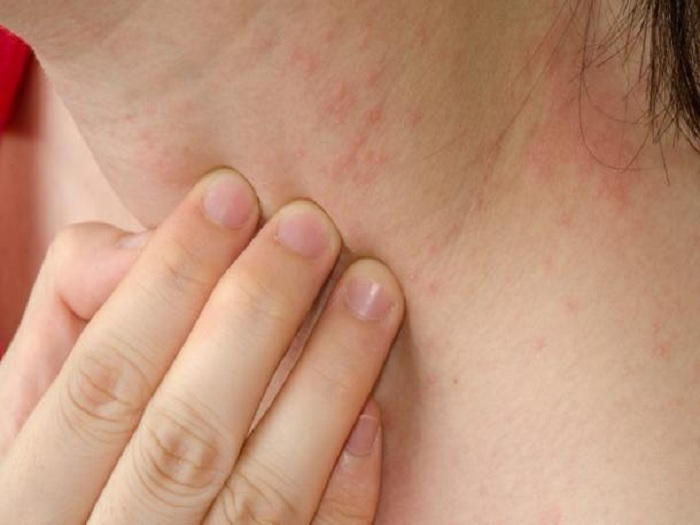 Neurodermatitis Causes