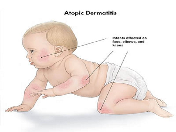 What are the symptoms of baby eczema