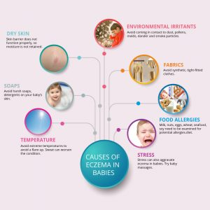 What Causes Eczema in Babies? Symptoms & Treatments