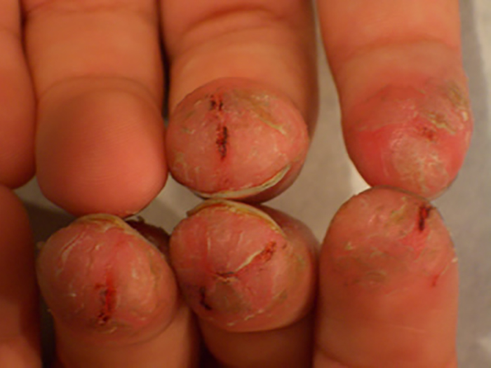 Eczema on fingertips pictures