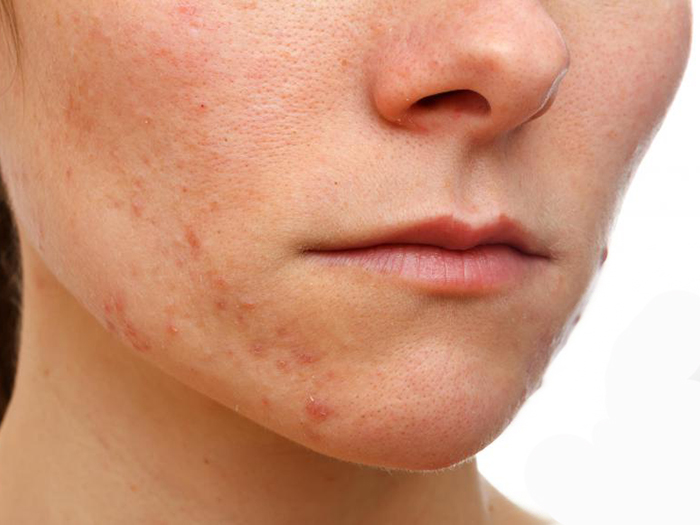 Facial Eczema – Treatments to Get rid of Eczema on Face