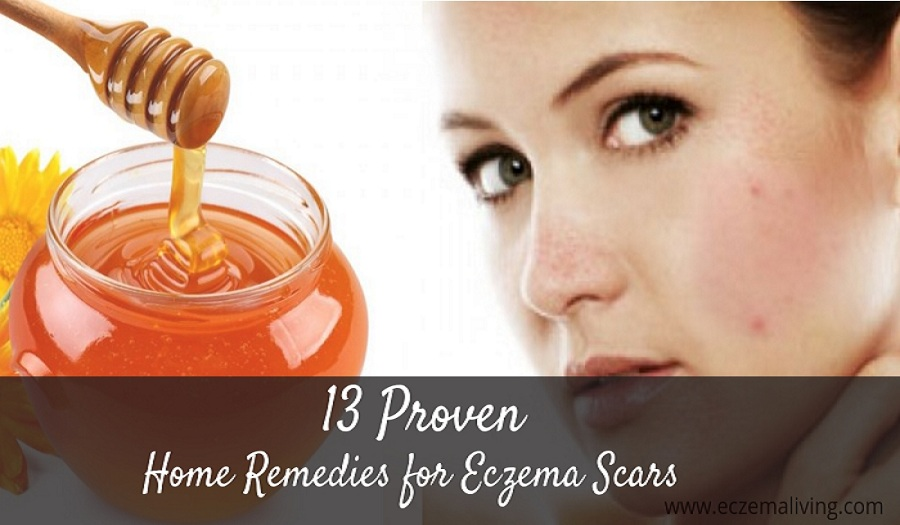 Eczema Scars – Home Remedies To Get Rid of Scars