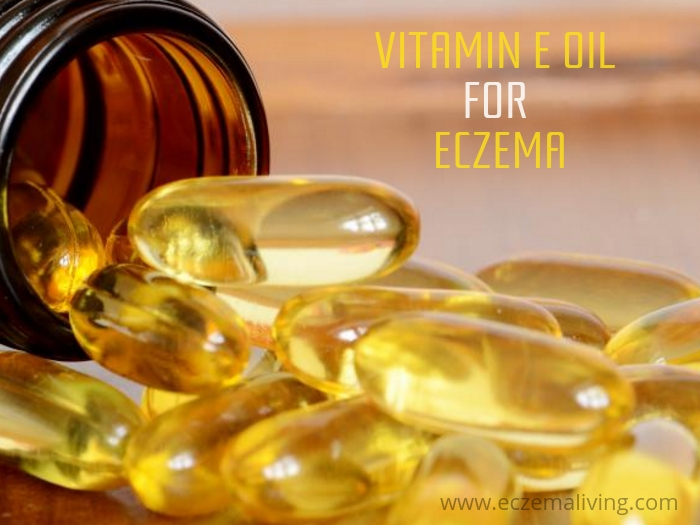 vitamin e oil for eczema