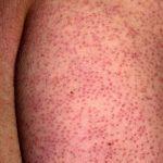 Follicular Eczema images