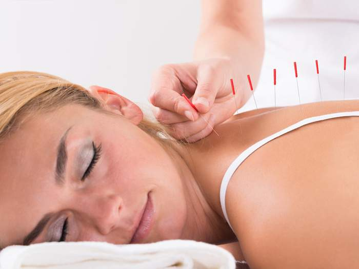 Can eczema be treated with acupuncture?