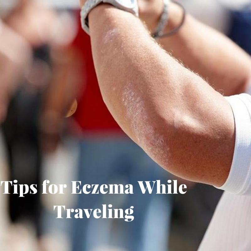 Tips for Eczema While Traveling