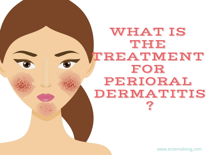Treatment Perioral Dermatitis