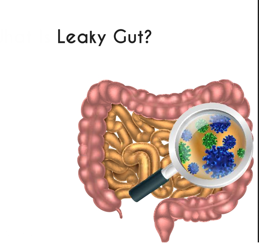 What-Is-Leaky-Gut