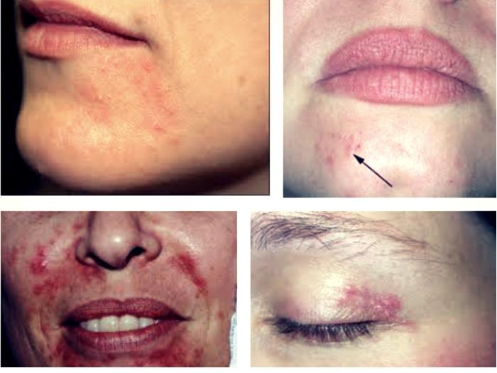 Symptoms of Perioral Dermatitis