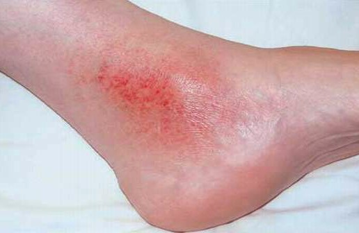 Signs and Symptoms of Chronic Venous Insufficiency