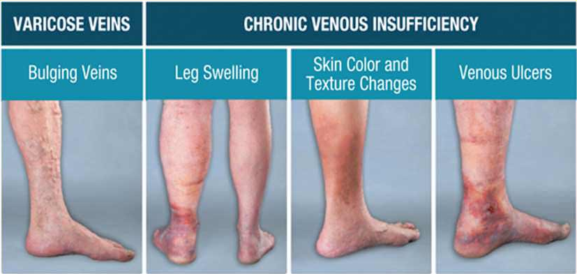 symptoms of venous insufficiency