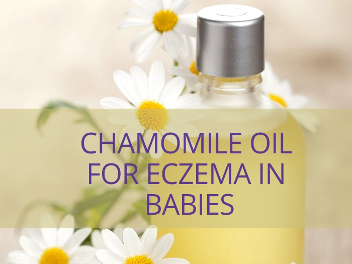 Chamomile Oil for eczema in babies