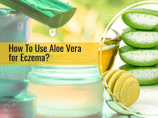Benefits of aloe vera - eczema scars