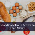 Is There any Connection Between Food Allergies and Eczema?