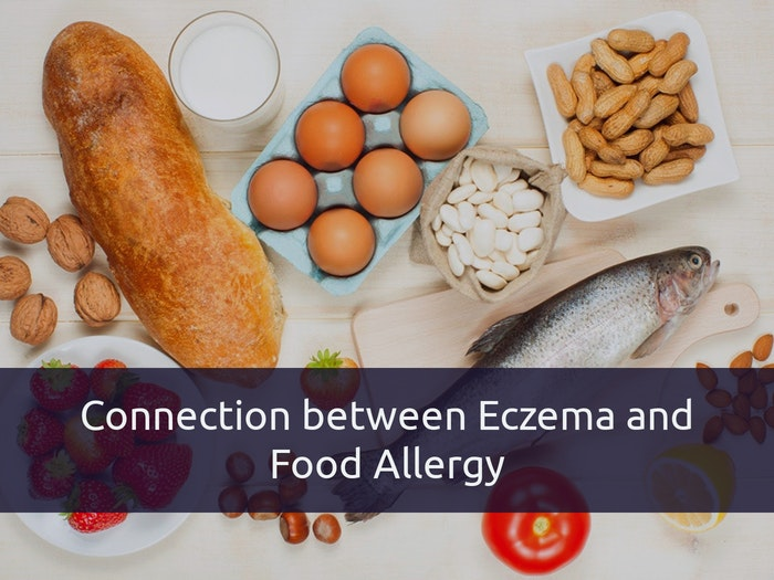 Food Allergies And Eczema – Is There any Connection?