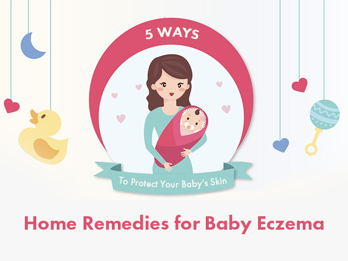 Top 5 Home Remedies for Baby Eczema – Rashes & Itchy Skin