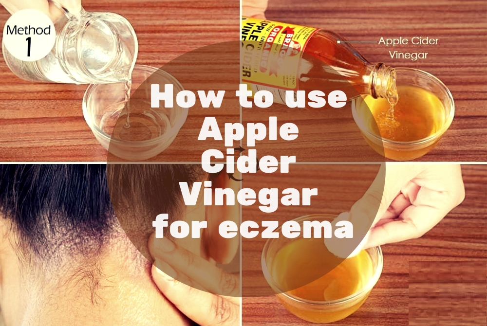 How to use Apple Cider Vinegar for eczema