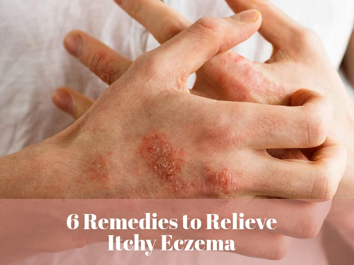 8 Home Remedies For Itchy Eczema Skin Relief