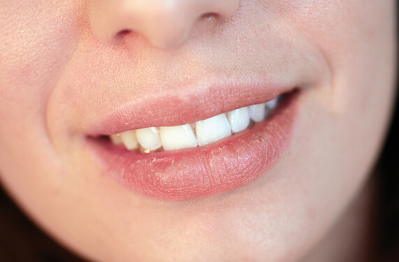 Eczema on Lips – Causes, Symptoms, Treatment & Prevention Tips