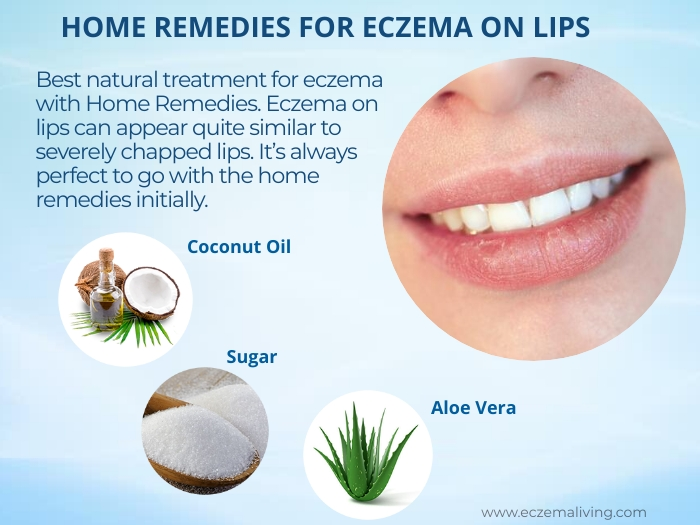 lip eczema home remedies
