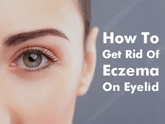 Eyelid Dermatitis – How to Get Rid of Eczema on Eyes?