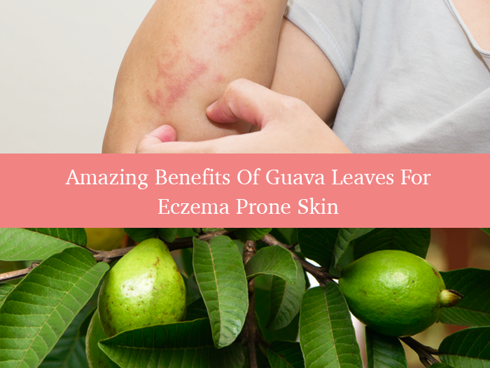 How to Use Guava Leaves For Eczema Prone Skin?