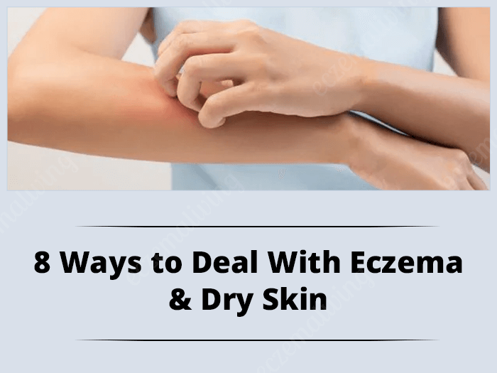Dry Skin Eczema – 8 Ways to Deal With Eczema and Dry Skin