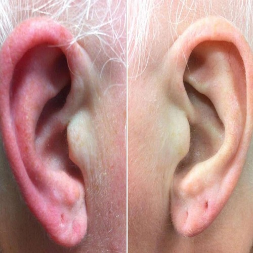 Ear dermatitis pictures