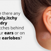 eczema on ear - Symptoms, causes, and treatment