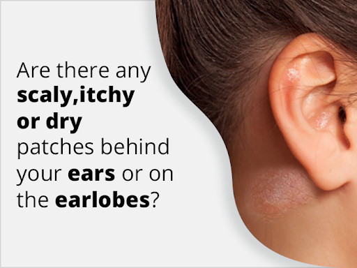 Eczema on Ear – How to Get Rid of Itchy or Dry Ear Eczema?