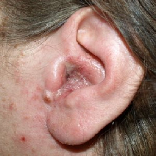 eczema on ears pictures