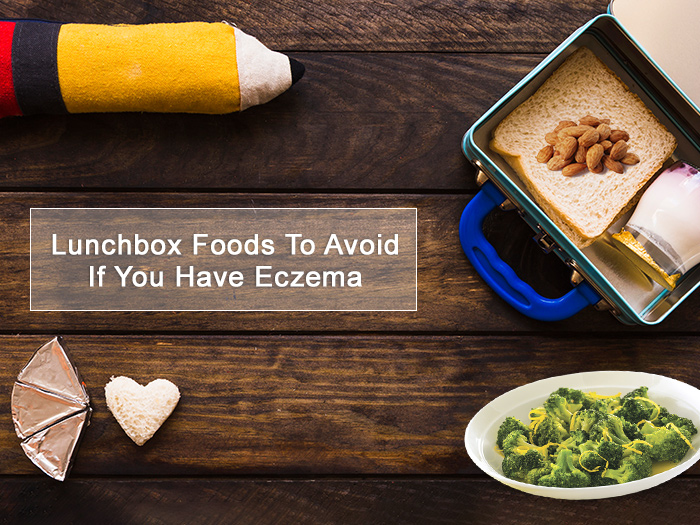Top 8 Lunchbox Foods To Avoid If You Have Eczema