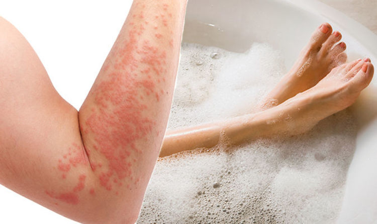 How often should you shower with eczema