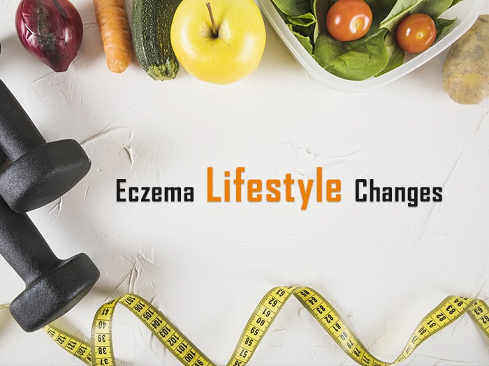 Eczema Lifestyle Changes – 12 Tips to Manage Severe Eczema