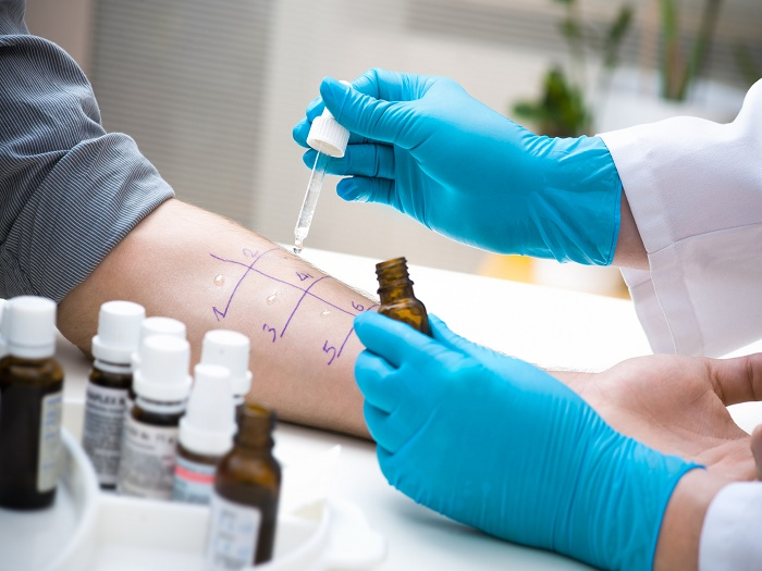 How does medicare cover allergy testing