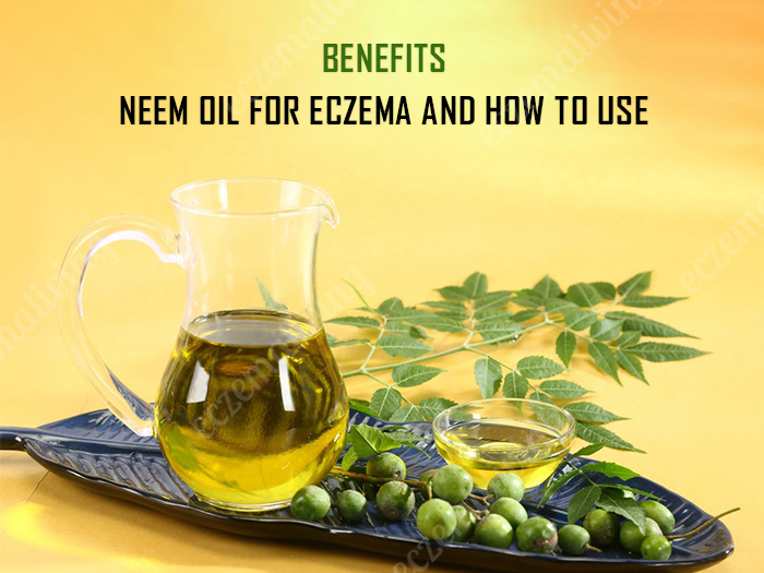 Neem Oil For Eczema Skin: Benefits, Side Effects & How To Use