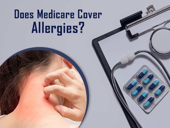 How Does Medicare Cover Allergy Testing?