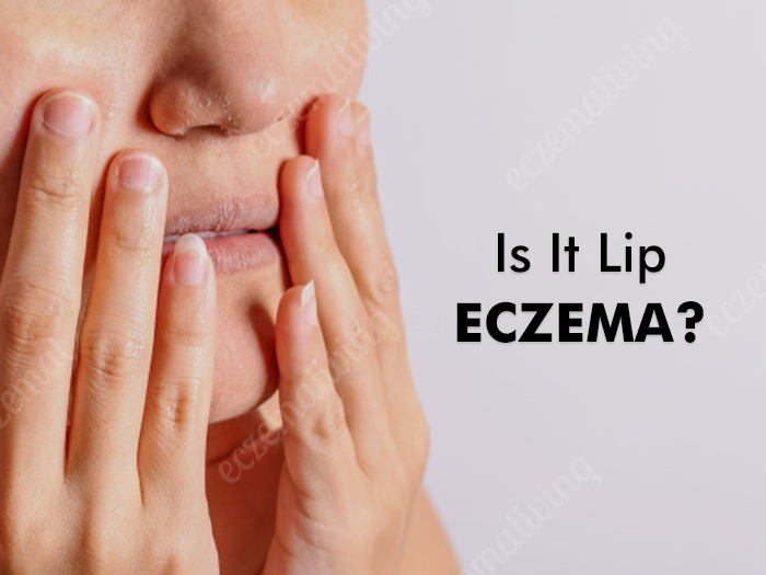 Eczema on Lips – Causes, Treatment & Home Remedies