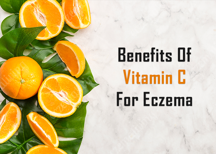Vitamin C For Eczema – It's Role & Benefits For Skin