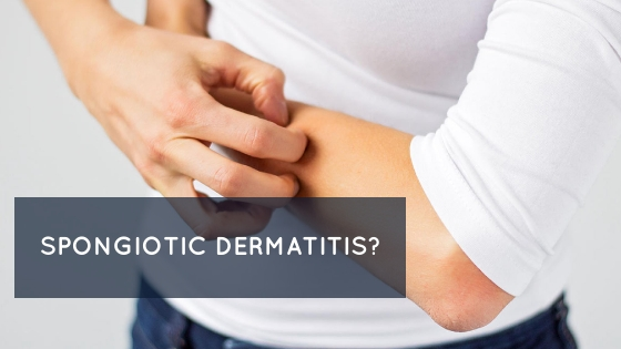 Spongiotic dermatitis Symptoms causes treatment